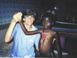 La piaga di Buruli è una delle tante malattie che prediligono i ragazzi. La strada della guarigione è lunga e piena di sofferenza. E' importante un'attenzione continua in un ambiente che garantisca le terapie ma anche una vita per quanto possibile serena insieme ad altri ragazzi.