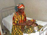 Le infezioni nei bambini sono molto frequenti in Africa: la presenza dell'HIV rende spesso mortali queste malattie.